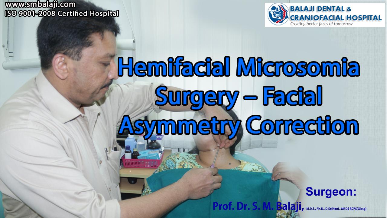 Hemifacial Microsomia Surgery – Facial Asymmetry Correction