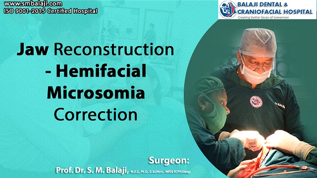Jaw Reconstruction - Hemifacial Microsomia Correction