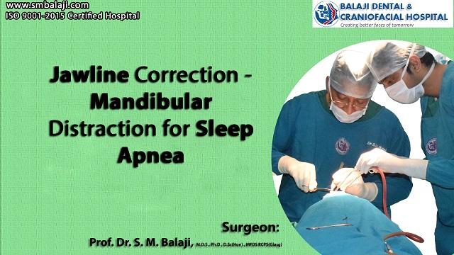 Jawline Correction - Mandibular Distraction for Sleep Apnea