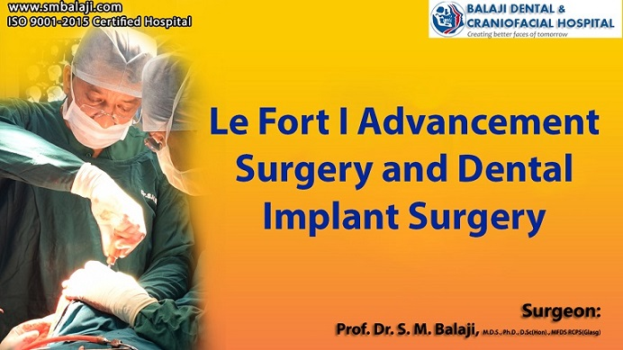 Le Fort I Advancement Surgery and Dental Implant Surgery