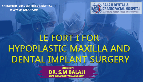 Le Fort I for Hypoplastic Maxilla and Dental Implant Surgery
