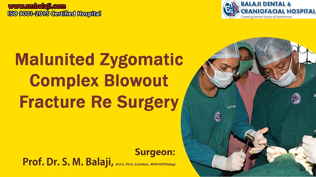 Malunited Zygomatic Complex Blowout Fracture Resurgery