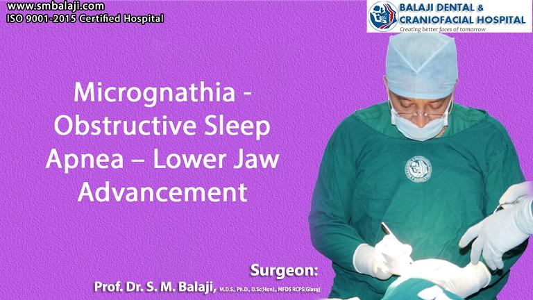 Micrognathia - Obstructive Sleep Apnea – Lower Jaw Advancement