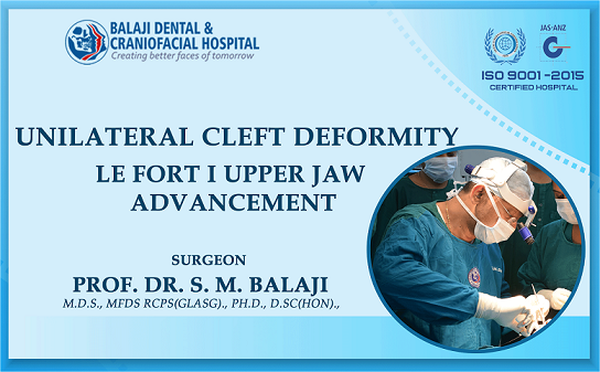 Unilateral Cleft Deformity – Le Fort I Upper Jaw Advancement