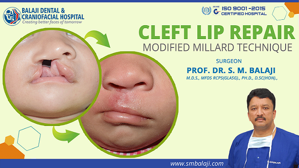 Cleft Lip Repair Surgery – Modified Millard Technique