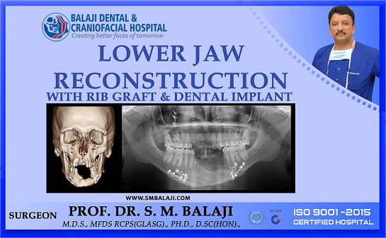 Lower Jaw Reconstruction with Rib Graft and Dental Implant