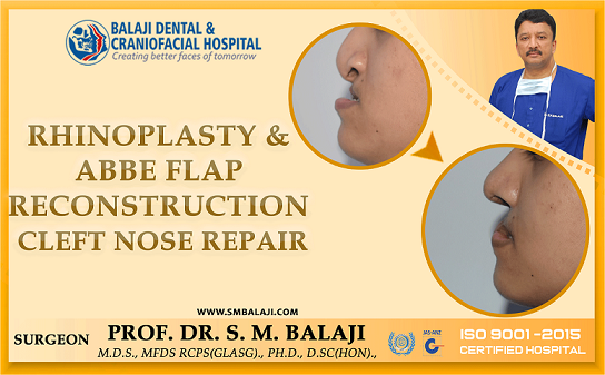 Rhinoplasty and Abbe Flap Reconstruction - Cleft Nose Repair