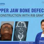 Upper Jaw Bone Defect - Reconstruction with Rib Graft