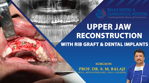 Upper Jaw Reconstruction with Rib Graft and Dental Implants