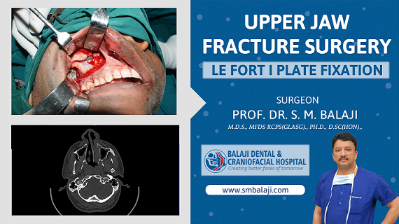 Upper jaw Fracture Surgery - Le Fort I Plate Fixation