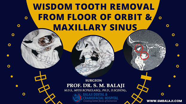 Wisdom Tooth Removal from Floor of Orbit and Maxillary Sinus