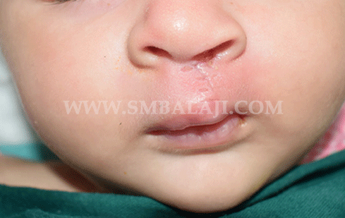 Cleft Lip Surgery - After Picture