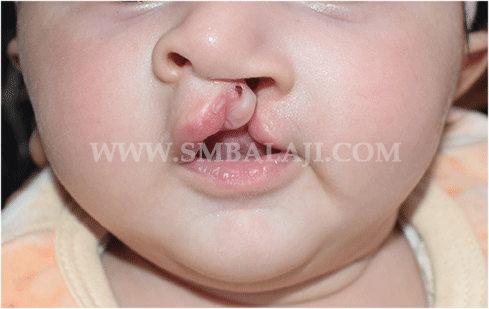 Cleft Lip Surgery - Before Picture