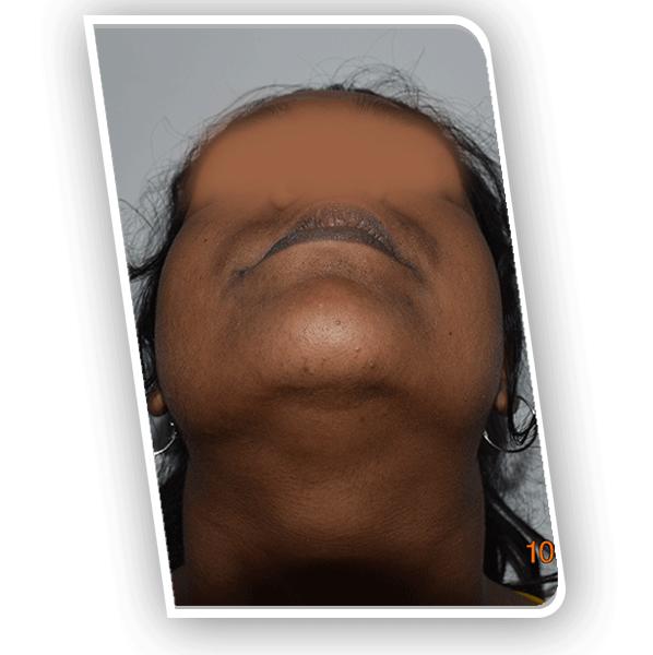 Upper Jaw Bone Defect