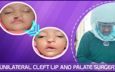 Unilateral Cleft Lip and Palate with Wide Gap and Very Small Minor Segment