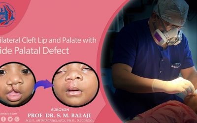 Unilateral Cleft Lip and Palate Deformity