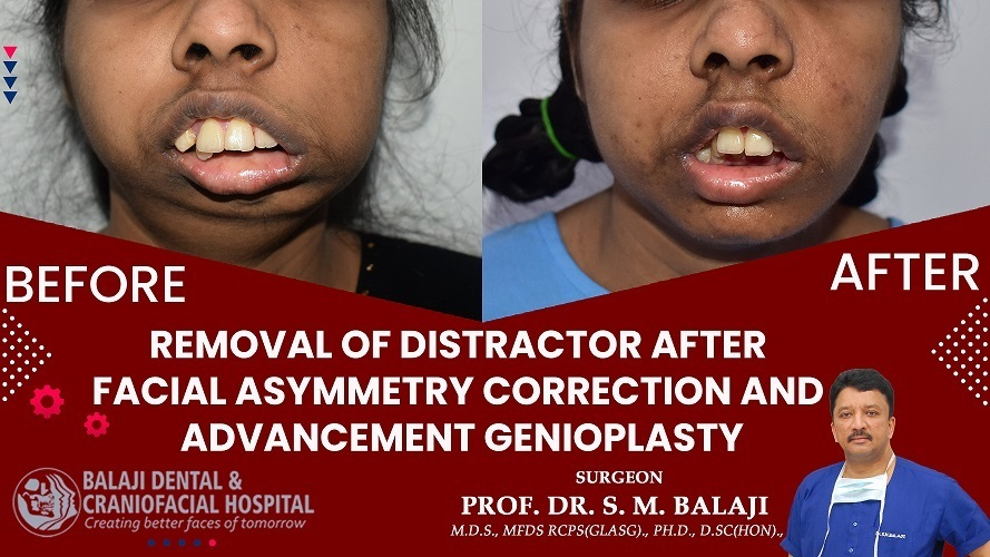 Removal of Distractor after Facial Asymmetry Correction and Advancement Genioplasty