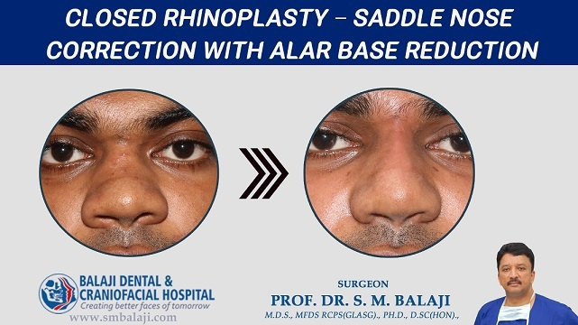 Closed Rhinoplasty – Saddle Nose Correction With Alar Base Reduction