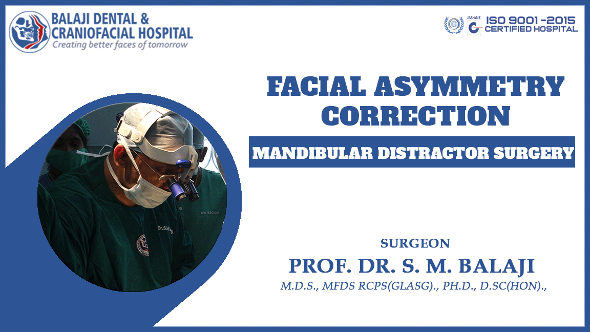 Facial Asymmetry Correction
