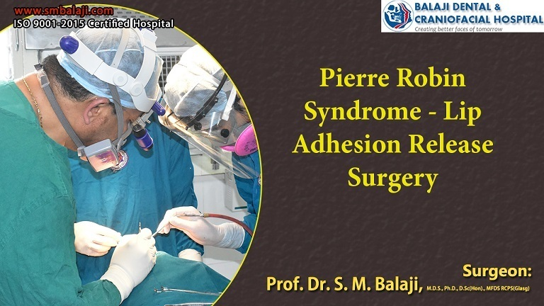 What Is Pierre Robin Syndrome