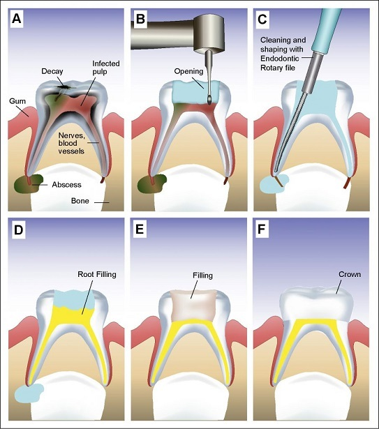 Root Canal Treatment Cost In Chennai