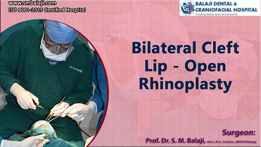 open rhinoplasty cost in India