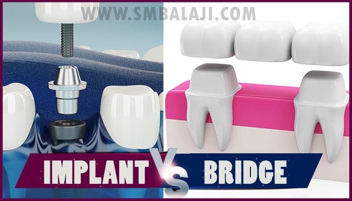 Dental Implant vs Bridge