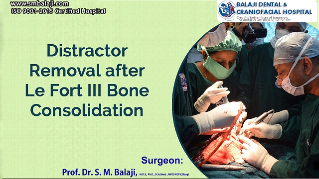 Distractor Removal after Le Fort III Bone Consolidation