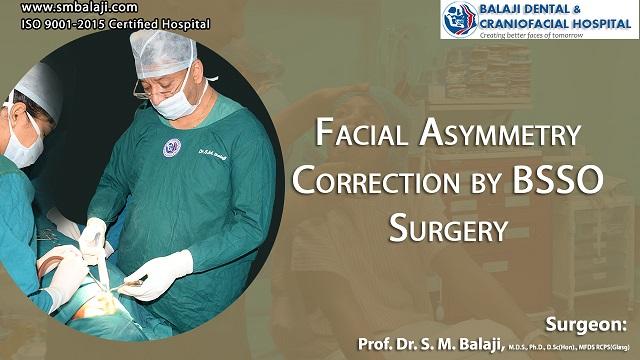 Facial Asymmetry Correction by BSSO Surgery