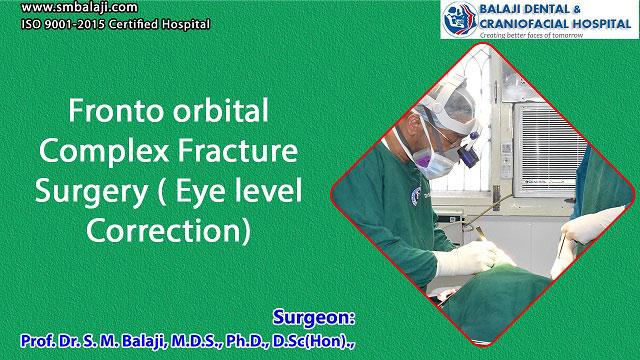 Fronto orbital Complex Fracture Surgery (Eye level Correction)