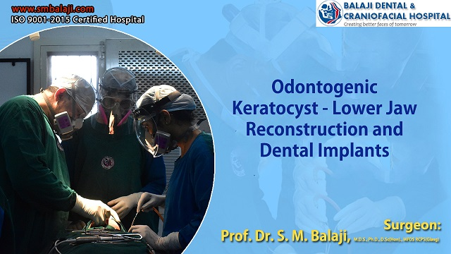 Odontogenic Keratocyst - Jaw Reconstruction And Dental Implants