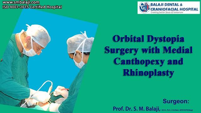 Orbital Dystopia Surgery Cost