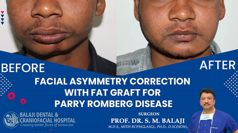 Facial Asymmetry Correction with Fat Graft for Parry Romberg Disease