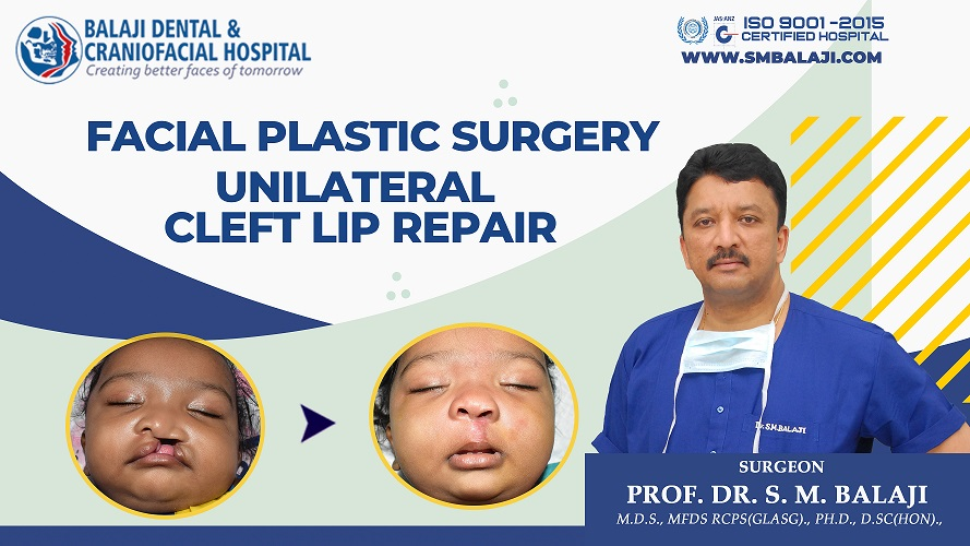 Cleft Lip And Palate Deformity In India