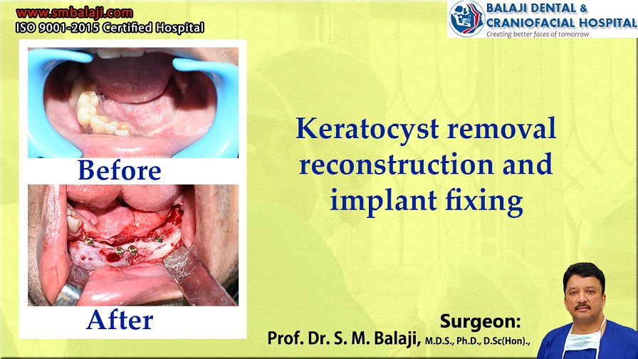 Keratocyst Removal Reconstruction And Implant Fixing