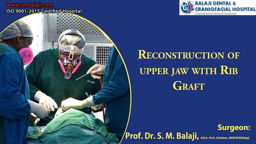 Jaw Reconstruction Surgery With Rib Graft