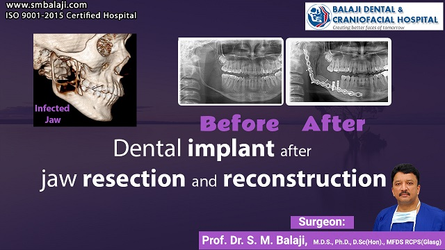 Dental Implant After Jaw Resection And Reconstruction