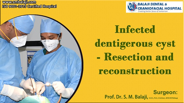Infected Dentigerous Cyst - Resection And Reconstruction