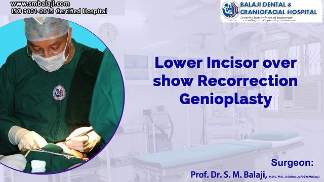 Lower Incisor Over Show Recorrection Genioplasty